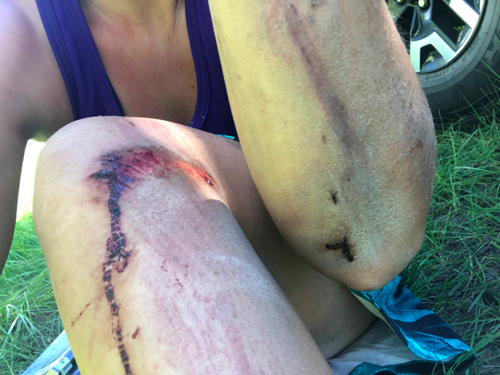 A close-up of scrapes and bruises on a woman's knee and elbow.