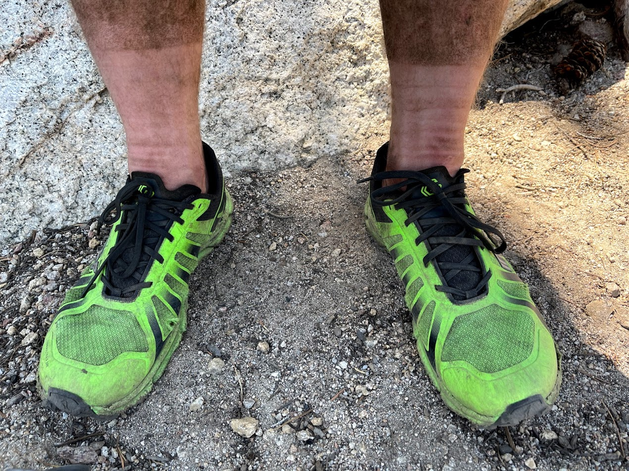 a man's dirty legs sitting out of a pair of green shoes